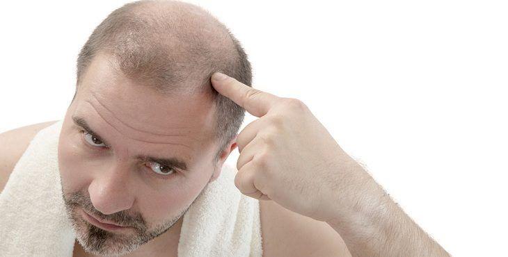 صور علاج تساقط الشعر للرجال , طرق علاق تساقط الشعر عند الرجال