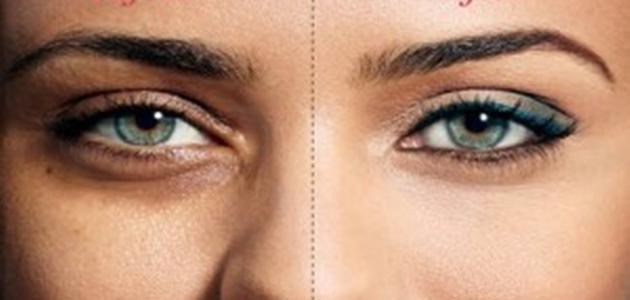 صورة الهالات السوداء تحت العين , ماهو سبب الهالات السوداء تحت العين