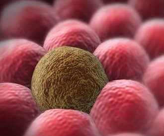 صور انتشار السرطان في الجسم , اسباب انتشار السرطان