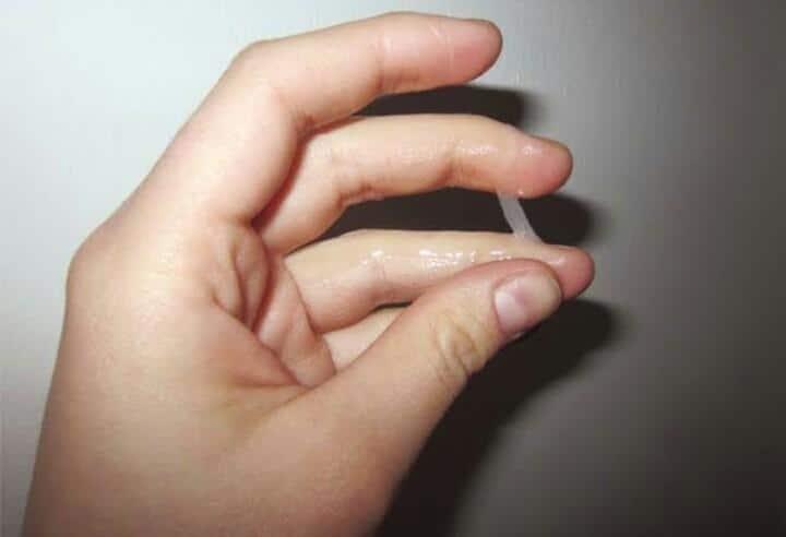 صورة ما سبب الافرازات البيضاء , هل الافرازات المهبلية عند البنات مرض ام عرض؟