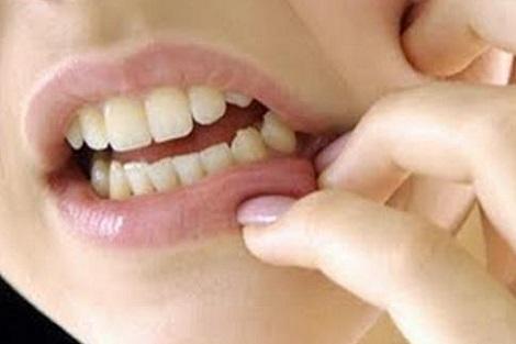 صور طرق تخفيف الم الاسنان , طرق منزليه لتسكين الم الاسنان