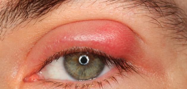 صورة ما سبب انتفاخ العين , اسباب تورم جفن العين