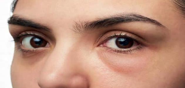 صور ما سبب انتفاخ العين , اسباب تورم جفن العين