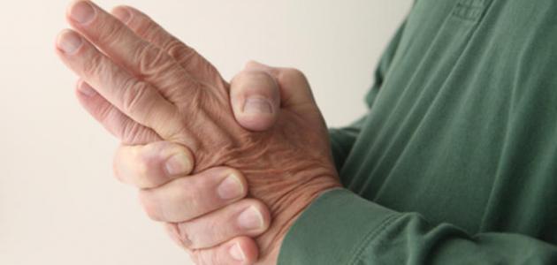 صورة اسباب خدر اليدين , ما سبب تنميل الاطراف