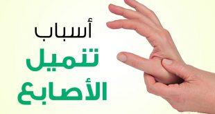 اسباب خدر اليدين , ما سبب تنميل الاطراف