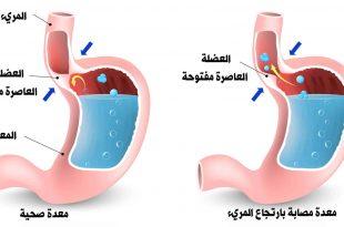 صورة اعراض قرحة المريء , اسباب ومضاعفات الاصابه بالتهاب المرئ