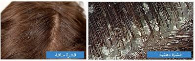 صورة انواع قشرة الشعر , اسباب و علاج قشره الشعر