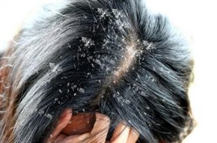 صور انواع قشرة الشعر , اسباب و علاج قشره الشعر