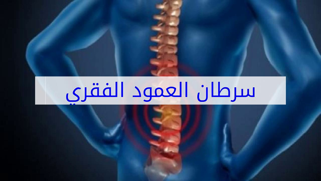 صور اعراض سرطان العمود الفقري , اعراض و اسباب الورم الفقري