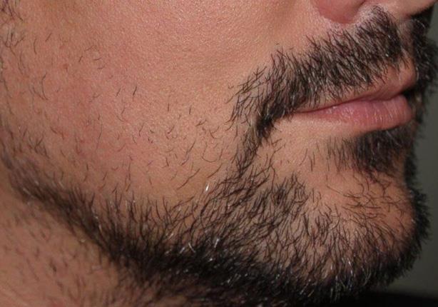 صورة شعر الذقن خفيف , وصفات طبيعيه لتكثيف شعر اللحيه