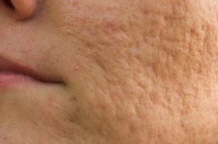 صورة علاج ثقوب الوجه , كيف نتخلص من حفلر الوجه