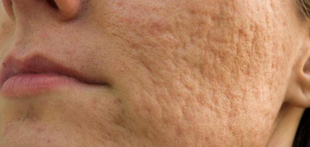 صور علاج ثقوب الوجه , كيف نتخلص من حفلر الوجه