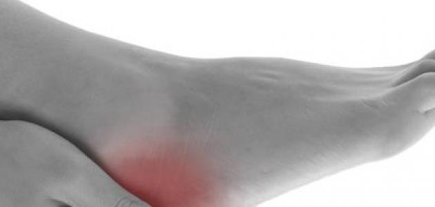 صور التخلص من الاملاح , وصفات طبيعيه للتخلص من الاملاح