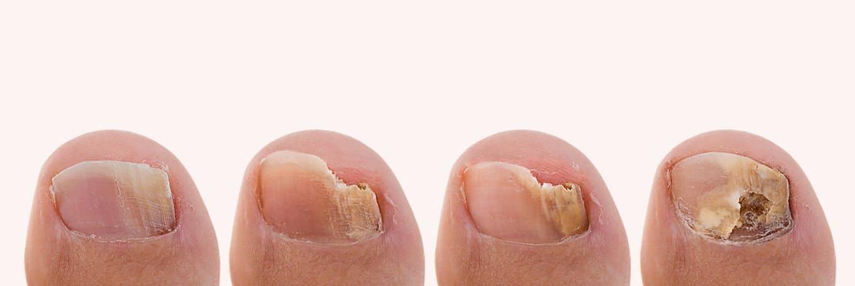 صور علاج فطريات الاظافر بالخل , كيفيه علاج فطريات اظافر القدم بالخل