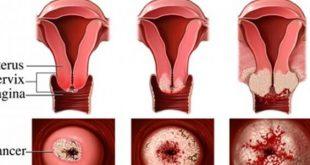 صورة اعراض قرحة عنق الرحم , اسباب و اعراض قرحه المهبل