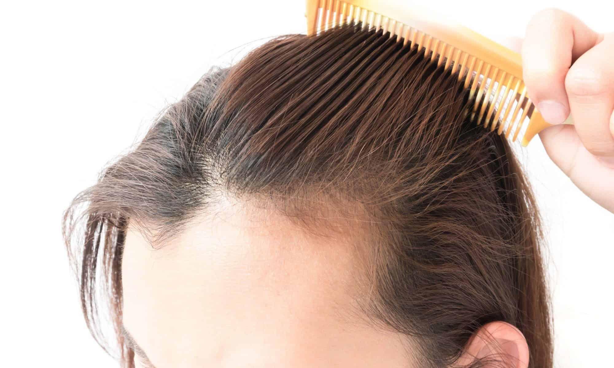 صورة علاج لتساقط الشعر مجرب , افضل علاج مضمون لسقوط الشعر