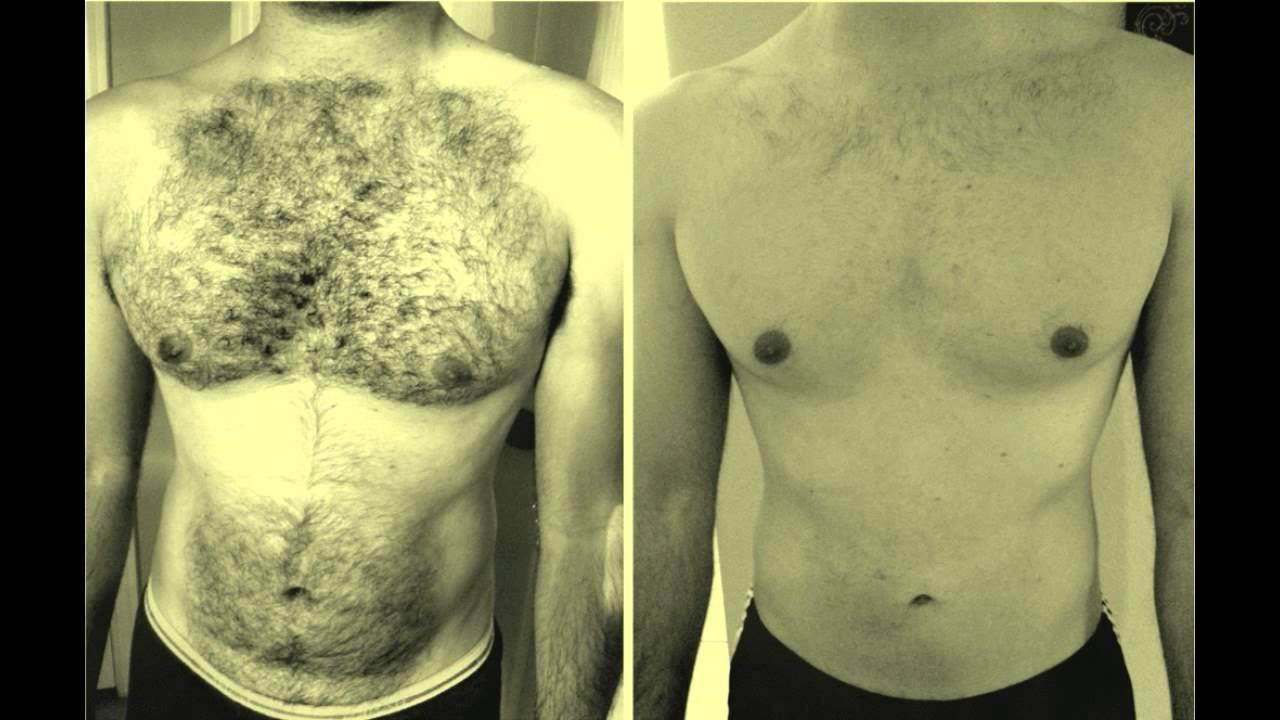 صور تكثيف شعر الجسم للرجال , طرق زياده شعر جسم الرجل