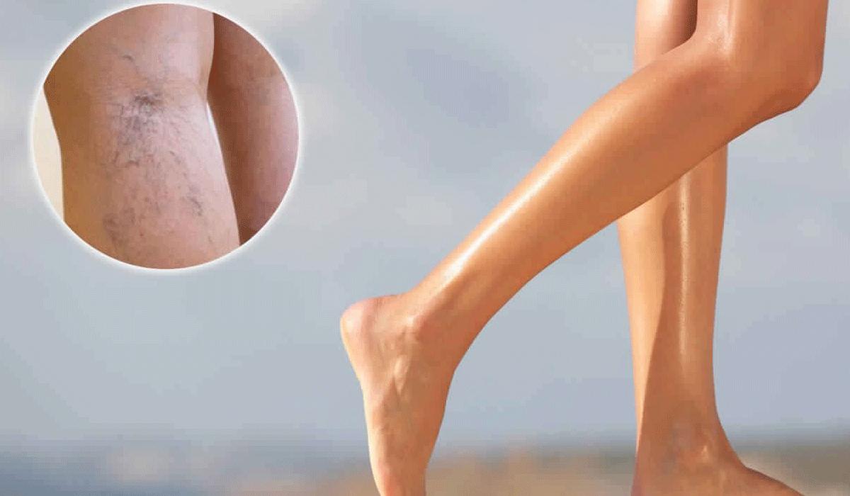 صور علاج دوالى الساقين , الطرق الحديثه في علاج دوالي الساقين