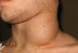 صور الغدد اللمفاوية في الرقبة بالصور , التهابات الغدد اللمفاويه