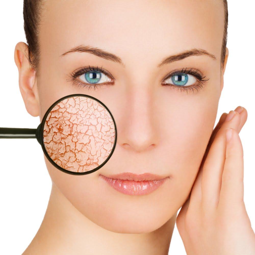 صورة البشرة الجافة وعلاجها , لو بشرتك جافه تعالي اعرفي علاجها