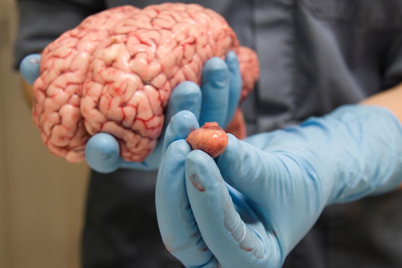 صورة اعراض اضطراب الغدة النخامية , ماهي اعراض خلل الغده النخاميه