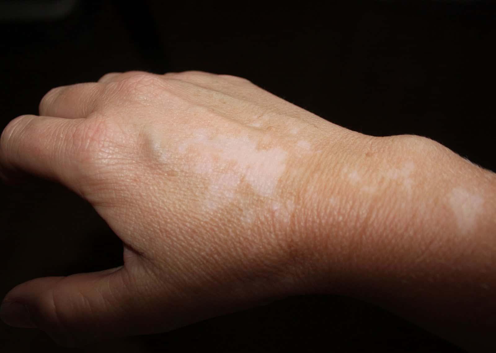 صورة ماهو علاج البهاق , احدث طرق لعلاج البهاق