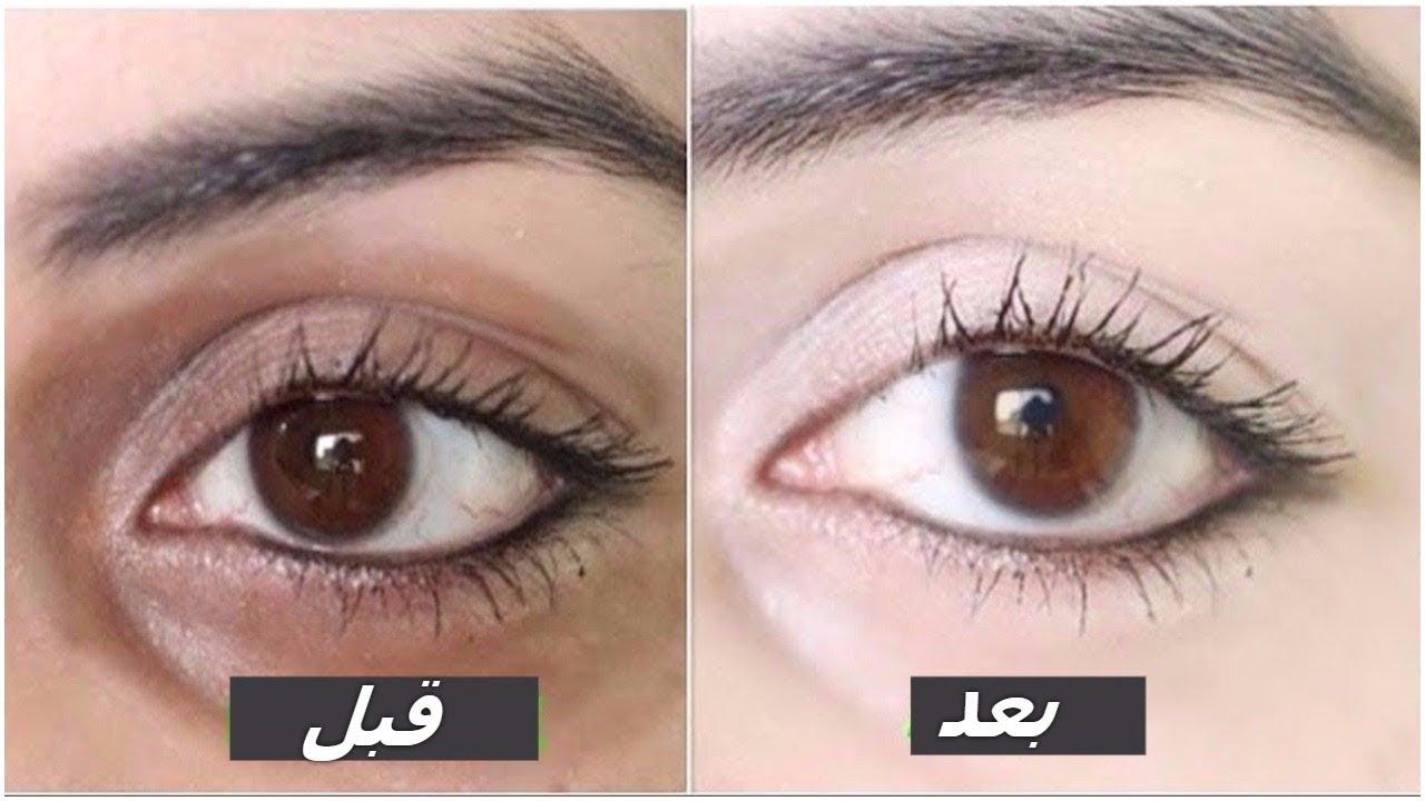 صورة وصفة للتخلص من السواد تحت العين , افضل الطرق للتخلص من الهالات السوداء