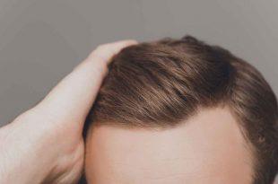 صورة ما بعد عملية زراعة الشعر , نصائح يجب اتباعها بعد زرع الشعر