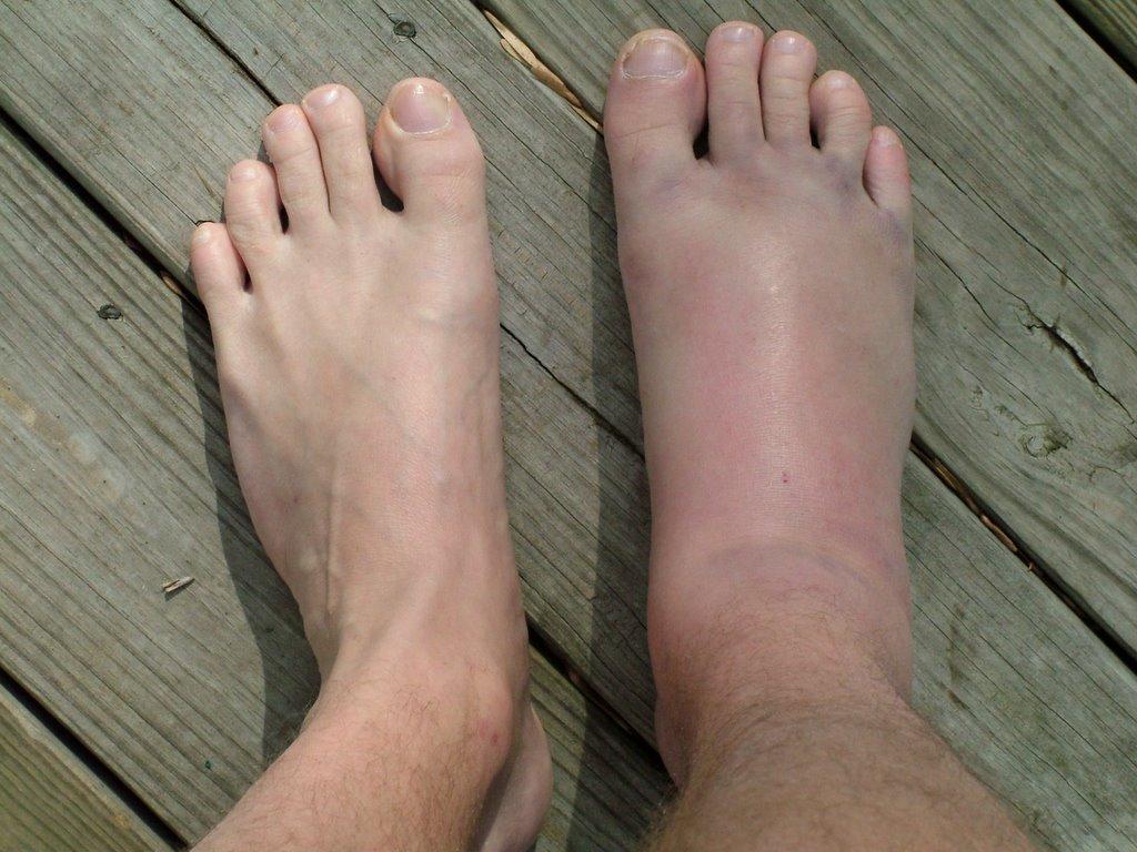 صورة علاج تورم القدم بعد الجبس , اسباب وطرق علاج الورم بعد الجبس