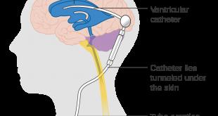 صورة مشاكل صمام المخ , مشاكل صمامات المخ وعلاجها
