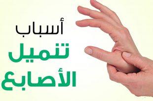 صورة ما سبب تنميل اليدين , ماهي الاسباب الرئيسيه في تنميل الايدي