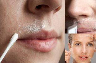صورة طريقة ازالة شعر الوجه , ازالة الشعر بطريقة سحرية