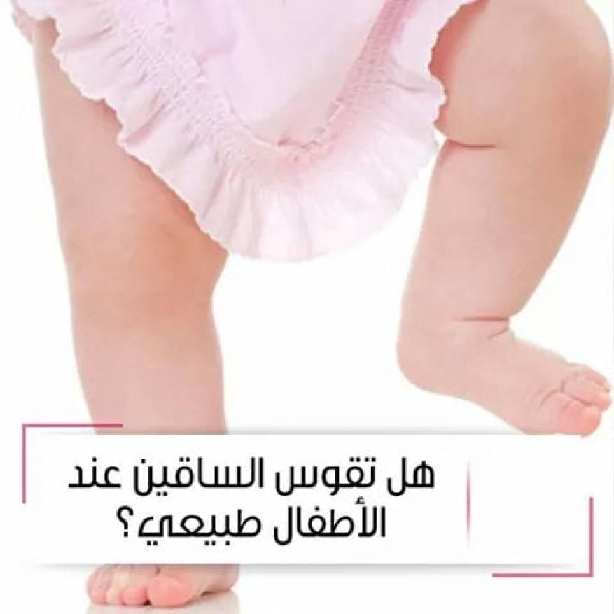 صور تقوس الساقين عند الاطفال بالصور , من اكثر الظواهر شيوعا في الاطفال