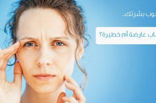 صور علاج شحوب الوجه بالاعشاب , شحوب الوجه واضراره