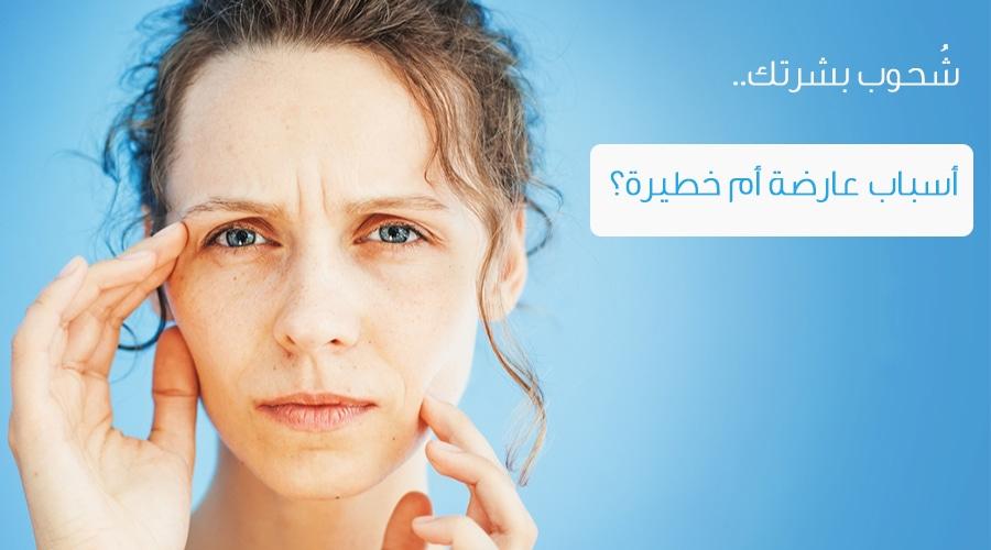 صورة علاج شحوب الوجه بالاعشاب , شحوب الوجه واضراره