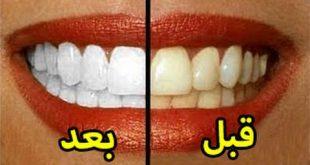 صور افضل واسرع طريقة لتبيض الاسنان , كيفيه التخلص من الاسنان الصفراء