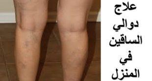 صور علاج الدوالي بالاعشاب , وصفات طبيعيه لعلاج دوالي الساقين