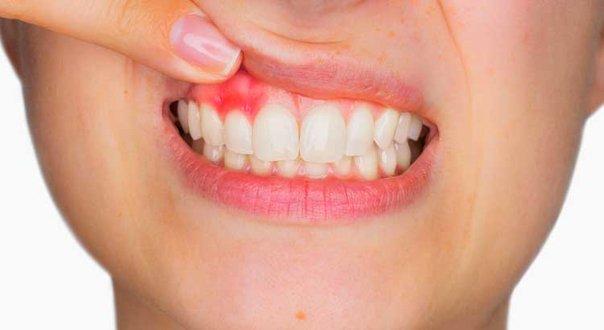 صورة علاج لحم الاسنان , اسباب التهاب اللثة وكيفية علاجها