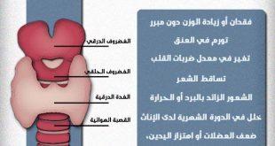 صور اعراض ورم الغدة الدرقية , علامات الاصابة بسرطان الغدة الدرقية