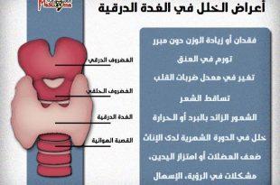 صورة اعراض ورم الغدة الدرقية , علامات الاصابة بسرطان الغدة الدرقية