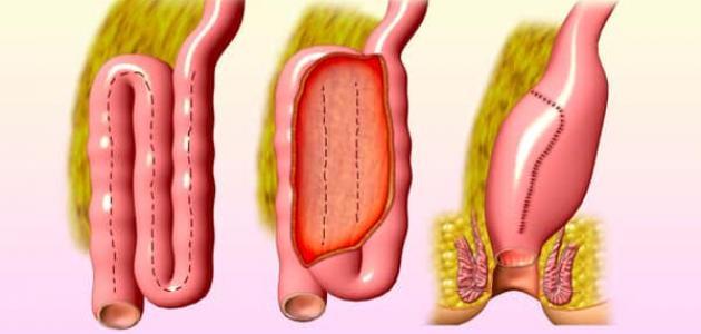 صور علاج المخاط في البراز بالاعشاب , العلاج الفعال لاضطرابات الجهاز الهضمى