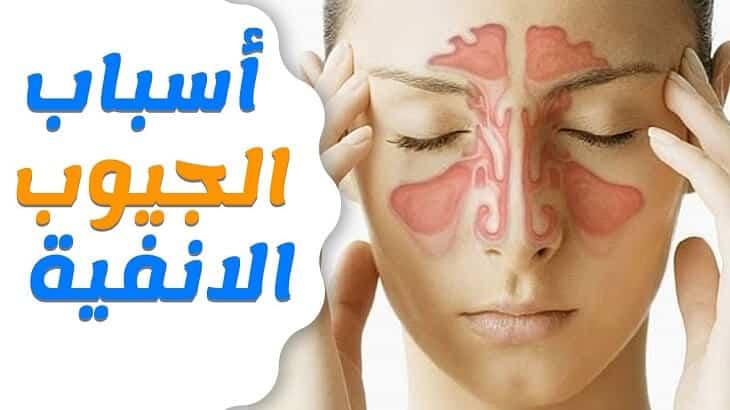 صور علاج الجيوب الانفية بزيت الزيتون , علاج التهاب و حساسيه الانف