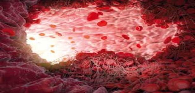 صورة ما هو تخثر الدم , جلطات الدم اسبابها وعلاجها؟