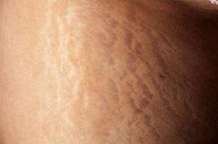 صور علاج تمدد الجلد , التخلص من الخطوط البيضاء بوسائل طبيعية