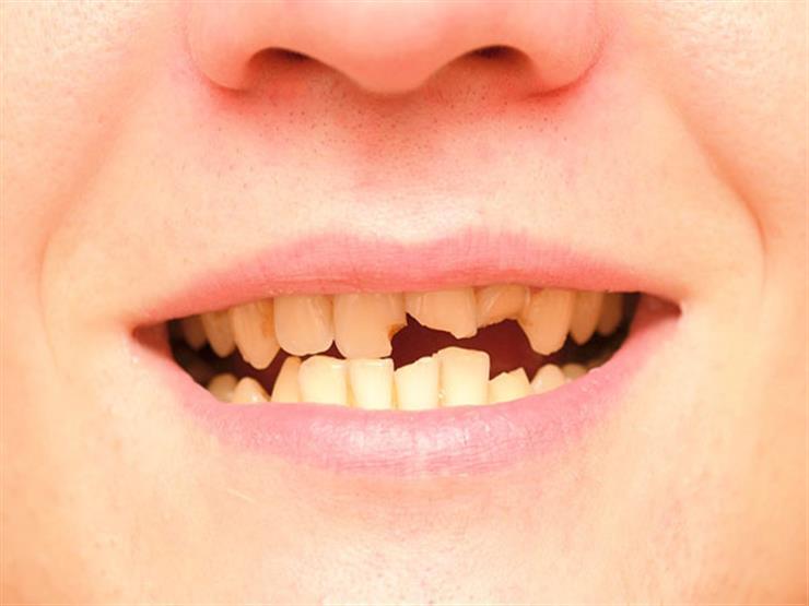 صورة تفسير حلم كسر الاسنان , تاويل رؤيا الاسنان