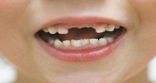 صور تفسير حلم كسر الاسنان , تاويل رؤيا الاسنان
