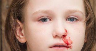 صور ما هو الرعاف , اسباب نزيف الدم المفاجىء وعلاجه