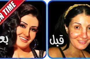 صورة صور ممثلات قبل عمليات التجميل , تجربة المشاهير مع عمليات التجميل