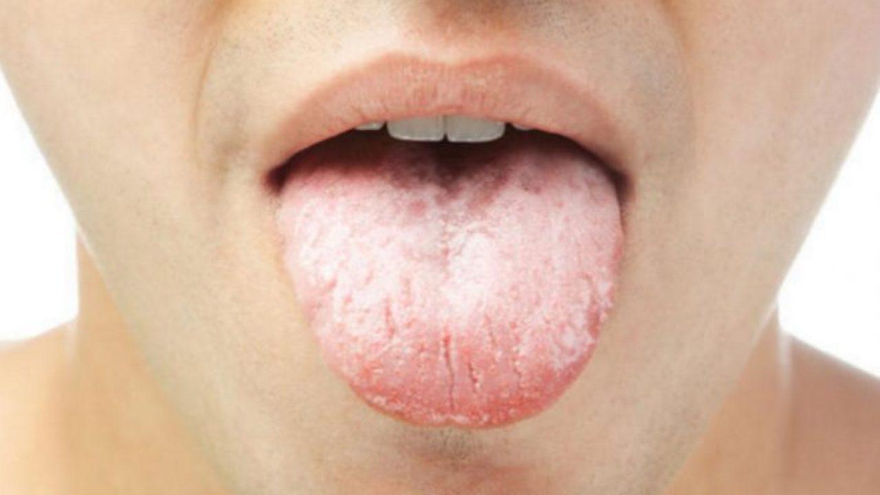 صورة سبب بياض اللسان , سبب عجيب لبياض الاسنان