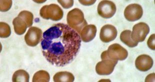 صورة ما معنى leucocytes , كلمه leucocytes في تحليل البول